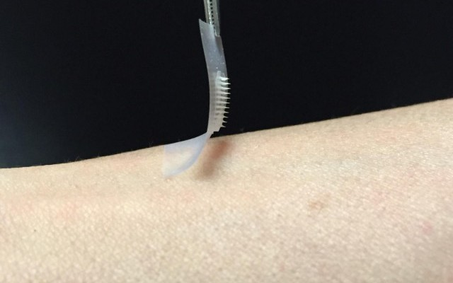 """New """"Smart"""" Insulin Patch Could Change Everything For Diabetics"""
